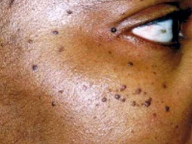 Skin Tag And Blemish Removal S3 Skin And Laser